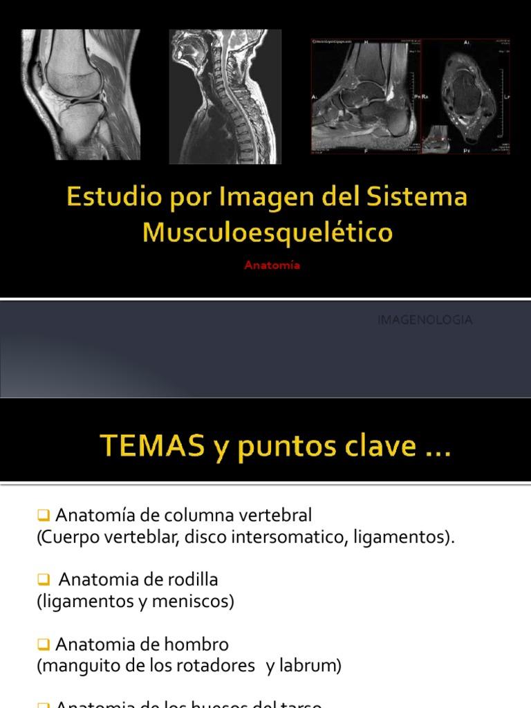 Excepcional Anatomía Del Hombro Mri Molde - Anatomía de Las ...