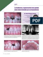 04_Extrusión ortodóncica, regeneración ósea guiada e implante.pdf
