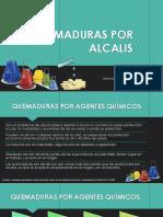 QUEMADURAS POR ALCALIS.pdf