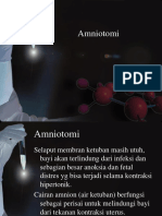 Amniotomi