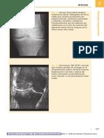 Diagnóstico Por La Imagen Del Sistema Musculoesquelético2011