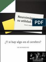 Neuroimagenes . Fundopsi
