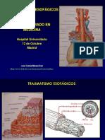 traumatismoesofgico2013slideshare-131105155602-phpapp02