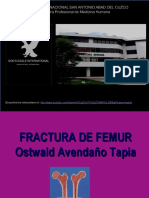 25 Fracturadefemur 130702060041 Phpapp02