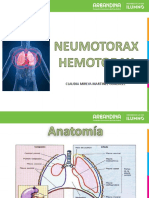 Diapositivas neomotorax.pptx