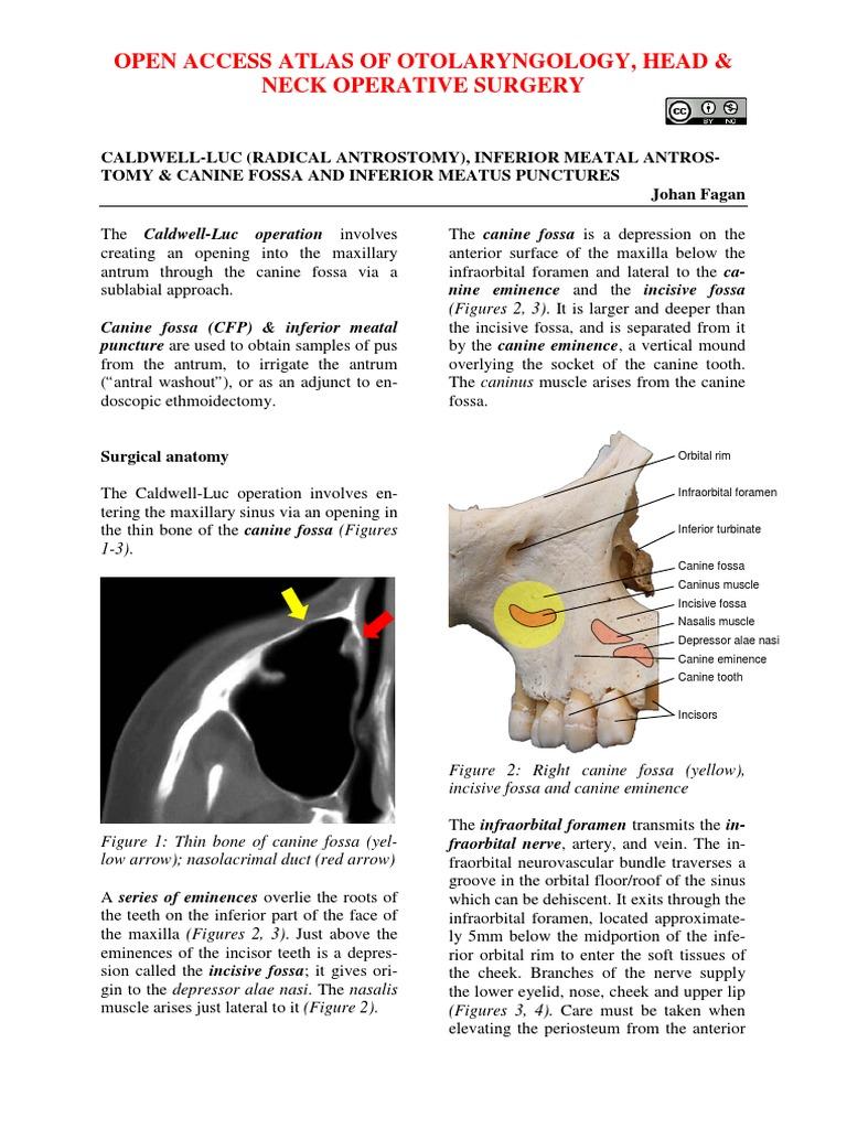 Caldwell Luc _radical Antrostomy_ Procedure Canine Fossa ... Inferior Meatus Puncture