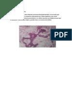 Adenocarcinoma in Situ
