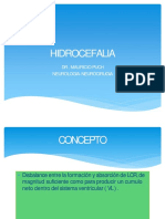 hidrocefalia-170406141152