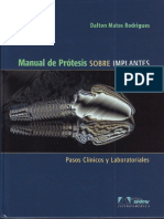 Manual de Protesis Sobre Implantes - Matos