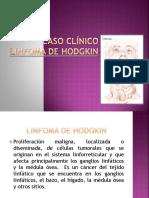 CASO CLÍNICO Linfoma de Hodgkin