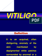 Kelainan Pigmentasi Vitiligo