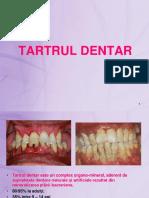 Tartrul Dentar-2017