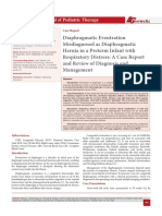 Diaphragmatic Eventration misdiagnosis with hernia diafragma.pdf