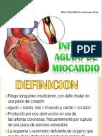 infartoagudodemiocardio (1).pptx