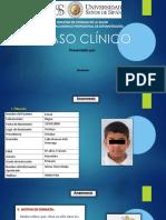 Caso Clinico Sipan