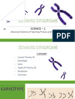 Edward Syndrome Ppt