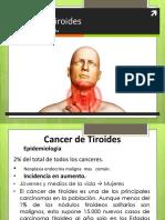 Cancer de Tiroides Lop