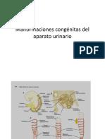 patologias embriologicas de urinario