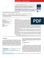 Proximal Fibular Osteochondroma