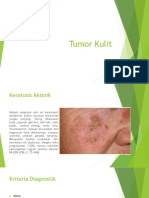 Tumor Kulit.pptx