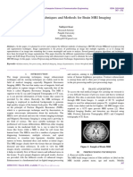 Enhancement Techniques and Methods for Brain MRI Imaging