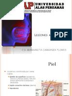 Lesiones Mucosa Oral