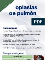 Neoplasias pulmón