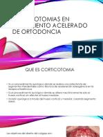 Corticotomias en Tratamiento Acelerado de Ortodoncia