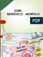 Caso Clínico Sd Nefrotico Nefrítico y Falla Renal Aguda