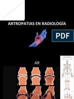 artritis-160729185843