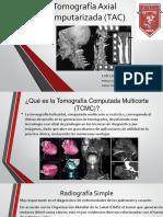 Tomografia Multicorte