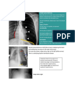 Tension pneumothorax.docx