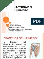 Fractura Del Húmero