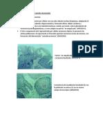 Carcinoma de Celula Escamosa Basaliode