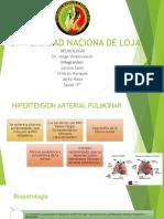 hipertension-pulmonar