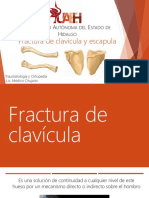 Fractura Clavícula y Escapula