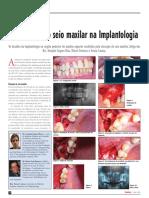 A ELEVAÇÃO DO SEIO MAXILAR NA IMPLANTOLOGIA-httpwww.ceimplantology.comdownloadsarticlesESeio Dentistry.pdf