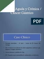 GI04 Gastritis y Cáncer Gástrico Felipe Adrián y Kevin