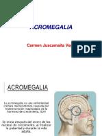 acromegalia.pptx
