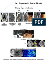 Brain Ischemia - Imaging in Acute Stroke