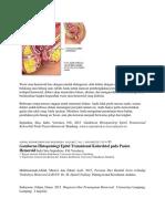 Wasir Atau Hemoroid Bisa Dengan Mudah Didiagnosis Oleh Dokter Dengan Memeriksa Saluran Belakang Atau Lubang Anus Tubuh Anda Untuk Mencari Pembengkakan Pembuluh Darah