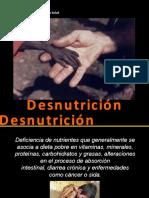 Desnutricion Ppp