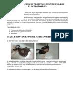 Caracterizacion de Proteinas de Antigeno