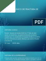 Caso Clínico de Fractura de Femur