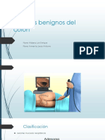 Tumores Benignos Del Colon