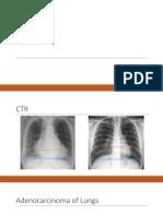 Clinical CXR