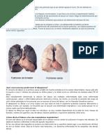 El Humo Del Tabaco Afecta Particularmente a Los Pulmones Que Es Por Donde Ingresa El Humo