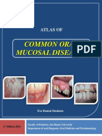 Atlas of Common Oral Mucosal Lesions (Final) AIN SHAMS UNIVERSITY IN Egypt