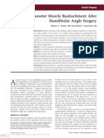 Masseter Muscle Reattachment After Mandibular Angle Surgery