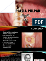 Hiperplasia Pulpar